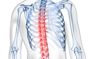 inflamed spine causing back pain