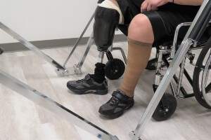 person with an amputated leg